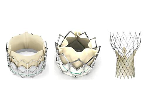 Aντικατάσταση της αορτικής βαλβίδας, Αθανάσιος Κολυβήρας Καρδιολόγος